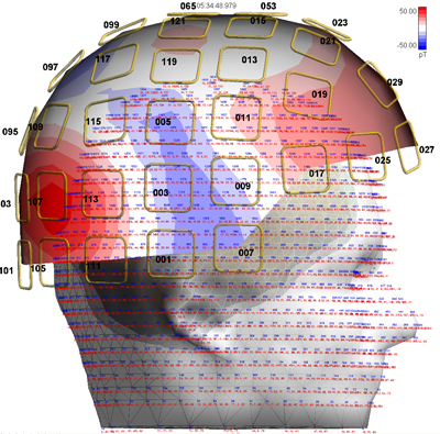 asa_meg_brain_model