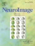 neuroimage2005